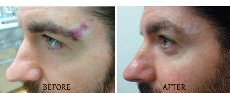 V-Beam: Before and After Treatment Photo - patient 1