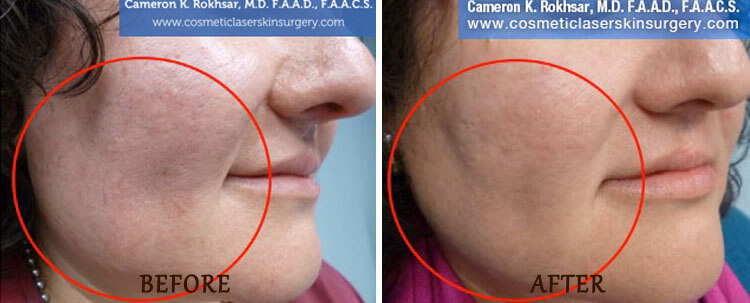 V-Beam: Before and After Treatment Photo - patient 2