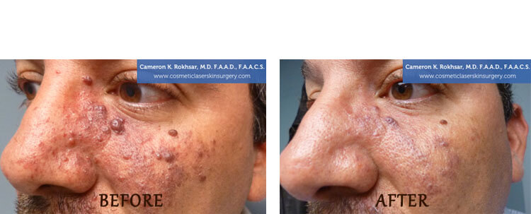 V-Beam: Before and After Treatment Photo - patient 3