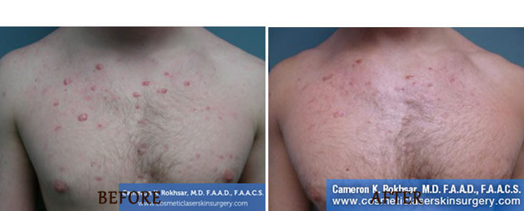 V-Beam: Before and After Treatment Photo - patient 4