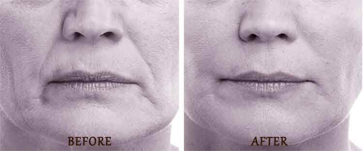 Volbella: Before and After Treatment Photo - patient 2