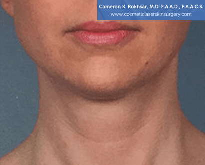 Woman's face, After Kybella Treatment - front view, patient 2