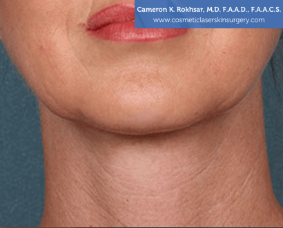 Woman's face, After Kybella Treatment - front view, patient 1