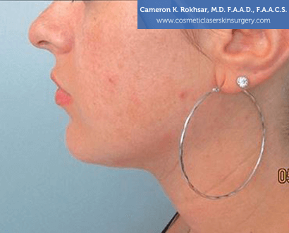 Woman's face, After Liposuction Treatment - left side view, patient 1