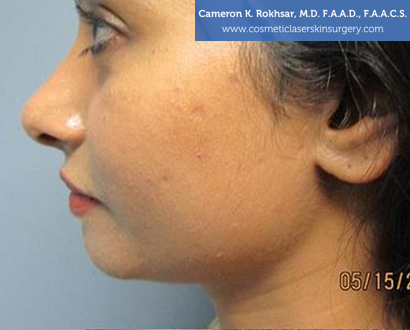 Woman's face, Before Chin Job Treatment - left side view, patient 1