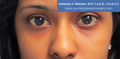 Woman's face, Before Non Surgical Eyelift Treatment - front view, patient 2