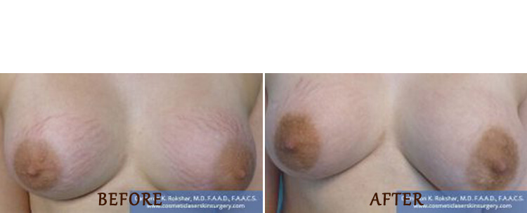 Stretch Marks: Before and After Treatment Photo - patient 1