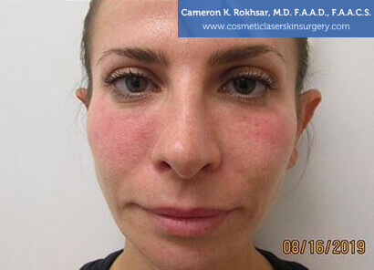 Woman's face, After Non Surgical Eyelift Treatment - front view, patient 1