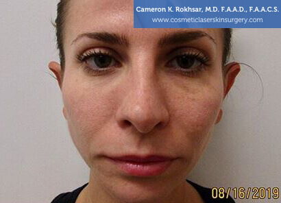 Woman's face, Before Non Surgical Eyelift Treatment - front view, patient 1
