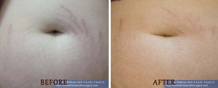 Stretch Marks: Before and After Treatment Photo - patient 2