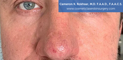 Man's face, After V-Beam Treatment - front view, patient 1
