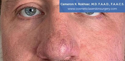 Man's face, Before V-Beam Treatment - front view, patient 1