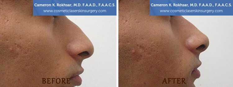 Non Surgical Nose Job: Before and After Treatment Photo - patient 2