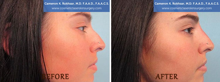 Non Surgical Nose Job: Before and After Treatment Photo - patient 3