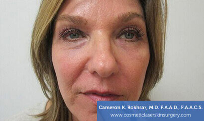 Woman's face, After Fraxel Treatment photo, front view, patient 2