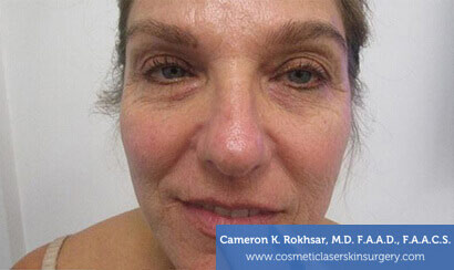 Woman's face, Before Fraxel Treatment photo, front view, patient 2