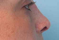 Non Surgical Nosejob - After treatment photo, female,right side view, patient 1