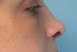 Non Surgical Nosejob - Before treatment photo, female,right side view, patient 1