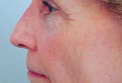 Non Surgical Nosejob - Before and After treatment photo, male, left side view, patient 11