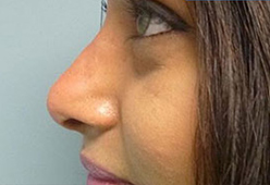 Non Surgical Nosejob - Before and After treatment photo, male, left side view, patient 12