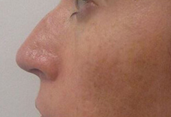Non Surgical Nosejob - Before treatment photo, female,front view, patient 2