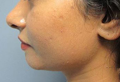 Non Surgical Nosejob - Before and After treatment photo, male, left side view, patient 8
