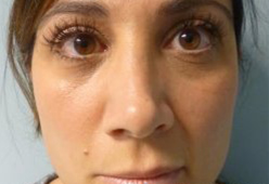 Non Surgical Nosejob - Before treatment photo, female,front view, patient 4