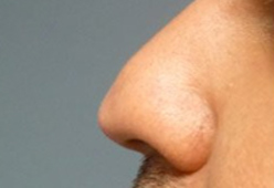 Non Surgical Nosejob - Before and After treatment photo, male, left side view, patient 6