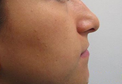 Non Surgical Nosejob - Before and After treatment photo, male, left side view, patient 9