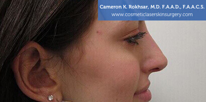 Non Surgical Nosejob After Treatment Photo - Female, side view, patient 3