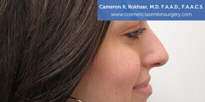 Non Surgical Nosejob Before Treatment Photo - Female, side view, patient 3
