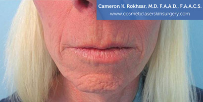 Woman's lips, After Fraxel Treatment photo, front view, patient 4