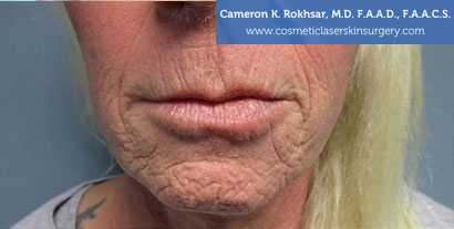 Woman's lips, Before Fraxel Treatment photo, front view, patient 4