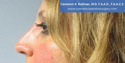 Non Surgical Nosejob After Treatment Photo - Female, side view, patient 6