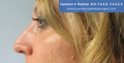 Non Surgical Nosejob Before Treatment Photo - Female, side view, patient 6