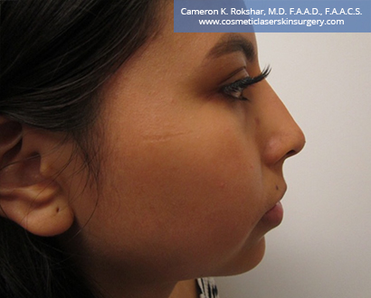 Non Surgical Nosejob After Treatment Photo - Female, side view, patient 9