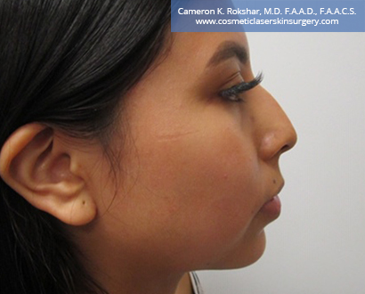 Non Surgical Nosejob Before Treatment Photo - Female, side view, patient 9