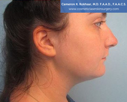 Female face, Photo - After Liposuction Treatment, side view, patient 1