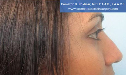 Non Surgical Nosejob After Treatment Photo - Female, side view, patient 10