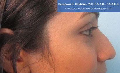 Non Surgical Nosejob Before Treatment Photo - Female, side view, patient 10