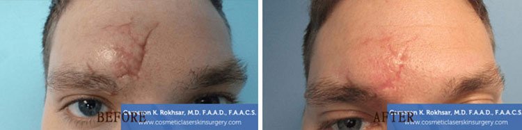 Scar Revision: Before and After Treatment Photo - patient 2