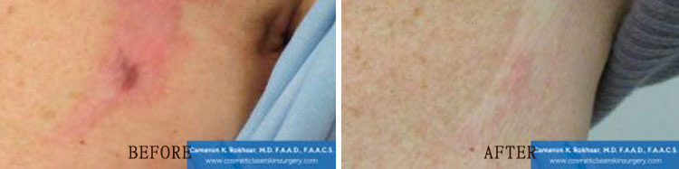 Scar Revision: Before and After Treatment Photo - patient 3