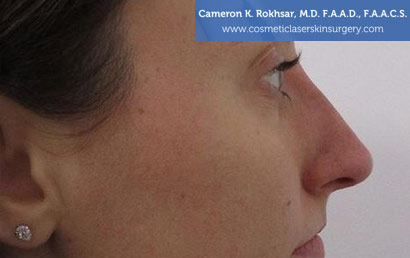 15 minute nosejob - After treatment photo, female, right view, patient 176