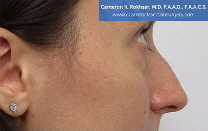 15 minute nosejob - Before treatment photo, female, right view, patient 176