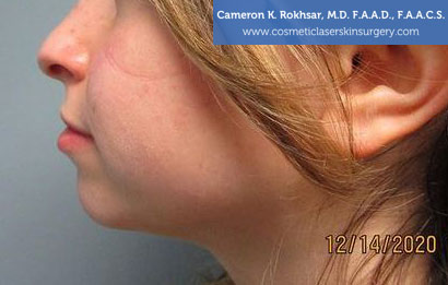 Non-Surgical photo: Before Chin Job Treatment, Female face, side view, patient 1