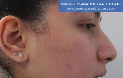 Non Surgical Nosejob Before Treatment Photo - Female, side view, patient 14