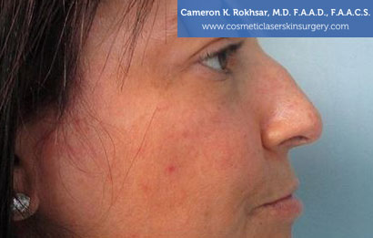 Non Surgical Nosejob Before Treatment Photo - Female, side view, patient 1
