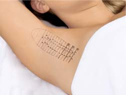 How it works - miraDry: A temporary tattoo is used to mark skin in preparation for treatment.